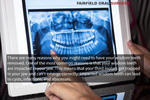 Wisdom Tooth Extraction Fairfield, CA